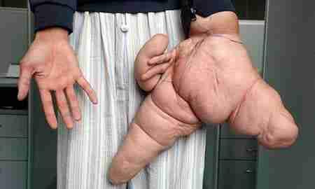 World's Largest Hand
