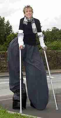Η γυναίκα με τα μεγαλύτερα πόδια
