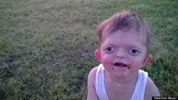 Όταν τα παιδιά συναντούσαν αυτό το μικρό αγόρι τρόμαζαν. Μέχρι που η μαμά του έγραψε ένα γράμμα