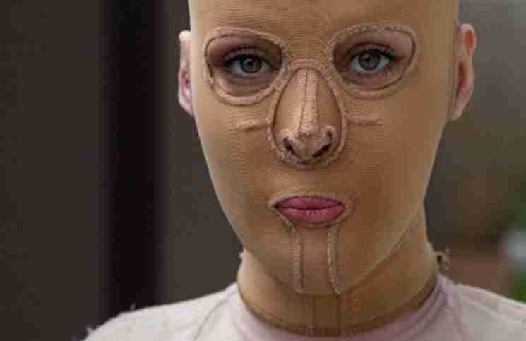 Μια μανιακός της έβαλε φωτιά. 2 χρόνια μετά αφαιρεί τη μάσκα και δείχνει το νέο της πρόσωπο.