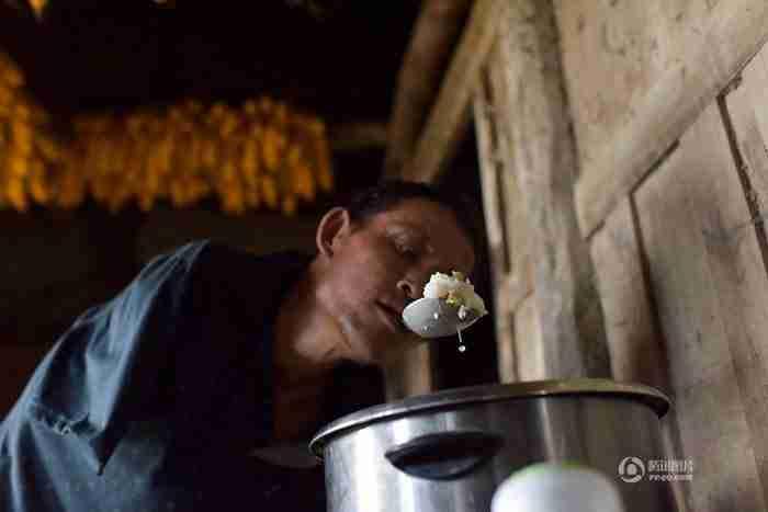 Αφοσιωμένος γιος χωρίς χέρια ταΐζει την παράλυτη μητέρα του χρησιμοποιώντας τα δόντια του