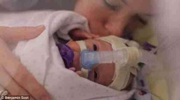 Η νέα μαμά κρατά το διασωληνωμένο μωράκι στην αγκαλιά της