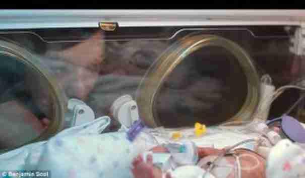 Η μαμά παρακολουθεί το μωράκι της που δίνει μάχη μέσα στη θερμοκοιτίδα