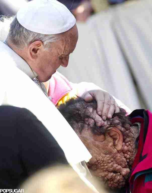 Ο Πάπας Φρανσίσκος αγκαλιάζει έναν παραμορφωμένο άντρα