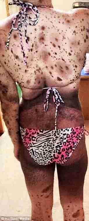 Αυτό το μωρό γεννήθηκε με εκατοντάδες σημάδια στο δέρμα του. Δείτε το 19 χρόνια μετά..