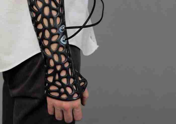Αυτή τη συσκευή που βοηθά στην επούλωση των οστών γρηγορότερα.