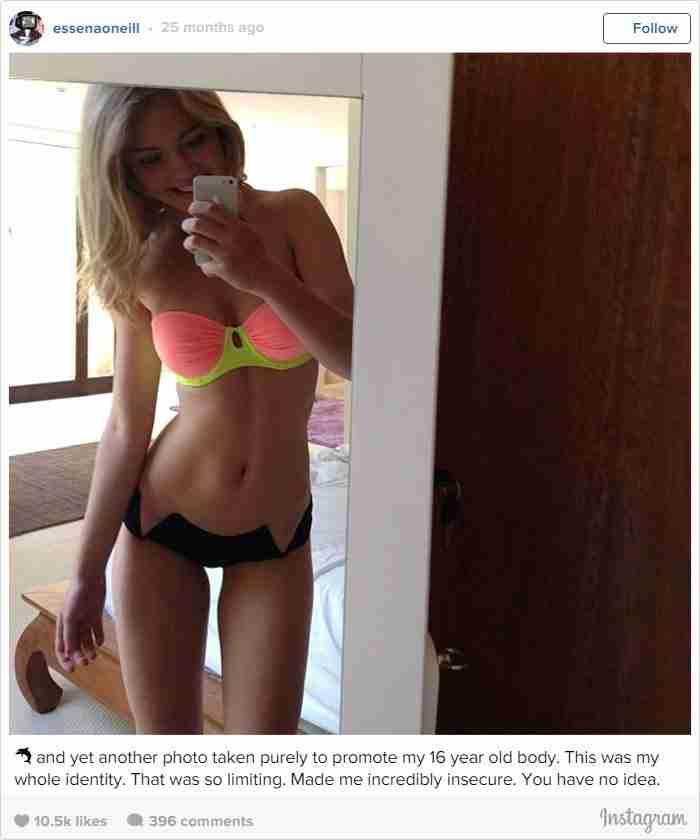 18χρονο μοντέλο διέγραψε τις φωτογραφίες της στο Instagram για να αποκαλύψει κάτι που όλοι πρέπει να γνωρίζουν