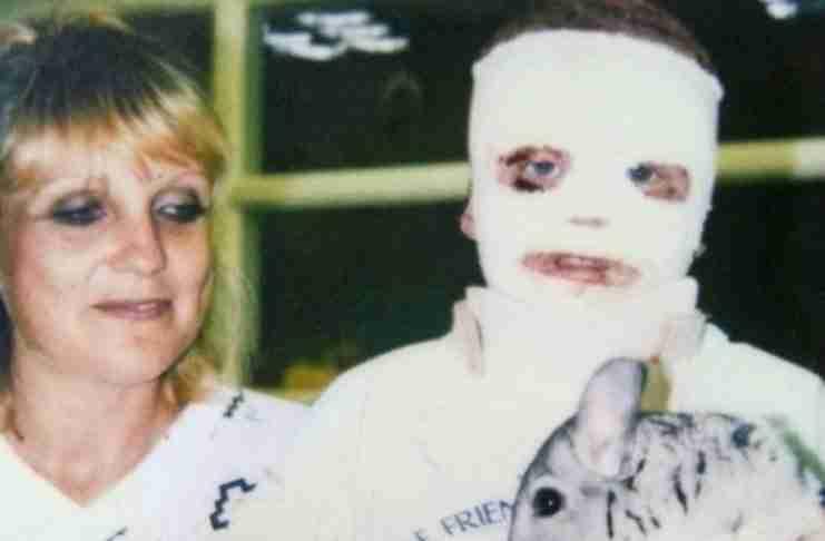 Όταν ήταν 6 ετών, υπέστη εγκαύματα στο 70% του σώματός του. Αλλά κοιτάξτε τι κάνει σήμερα...
