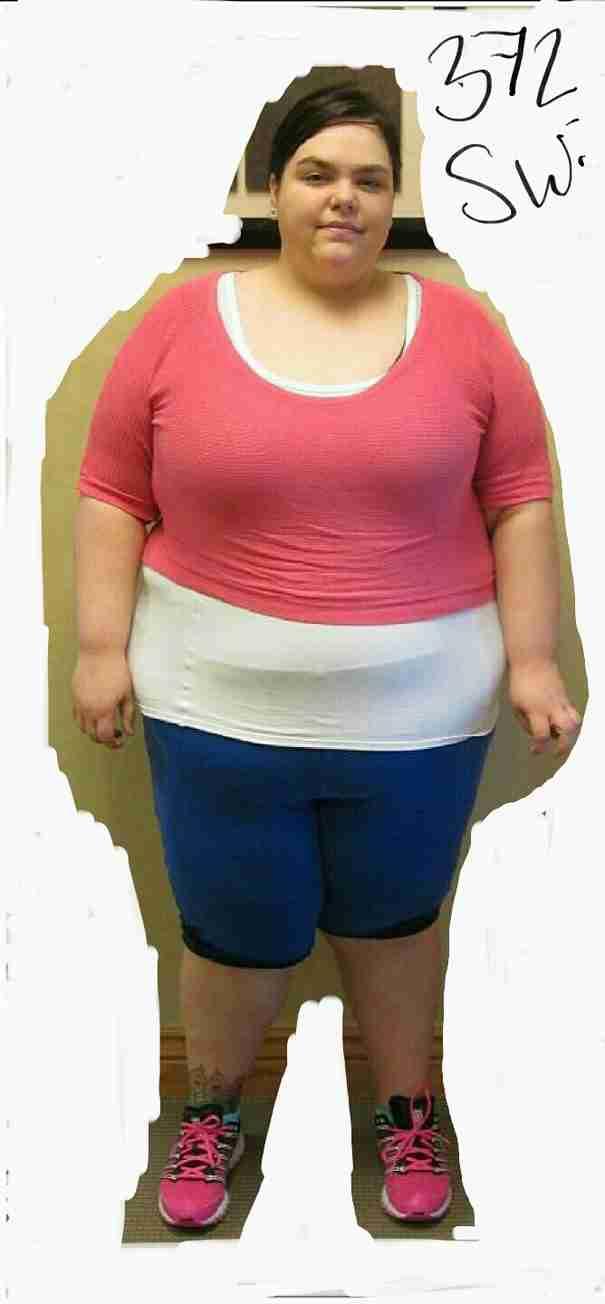Το Πριν και Μετά μετά την απώλεια 91 κιλών αυτής της γυναίκας στέλνει ένα δυνατό μήνυμα.