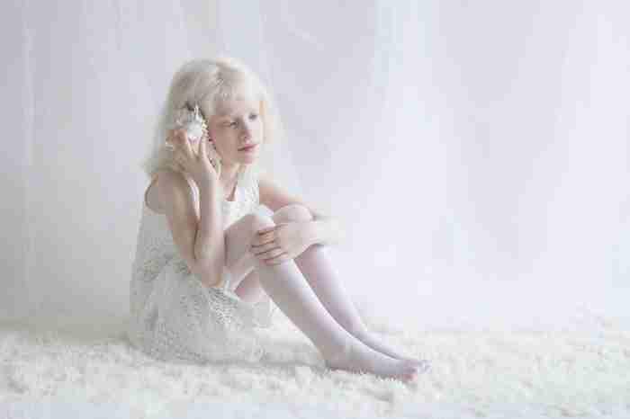 Φωτογράφος αιχμαλωτίζει την υπνωτική ομορφιά ανθρώπων με αλμπινισμό