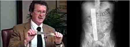 10 απίστευτα ιατρικά λάθη