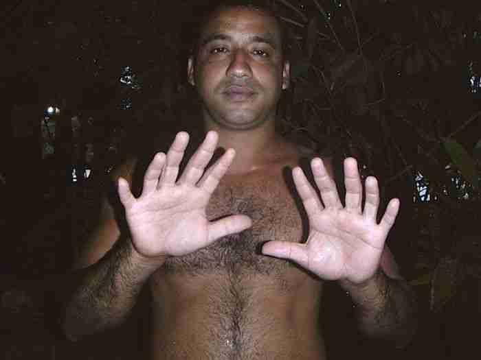 Ο άνθρωπος με τα 24 δάχτυλα