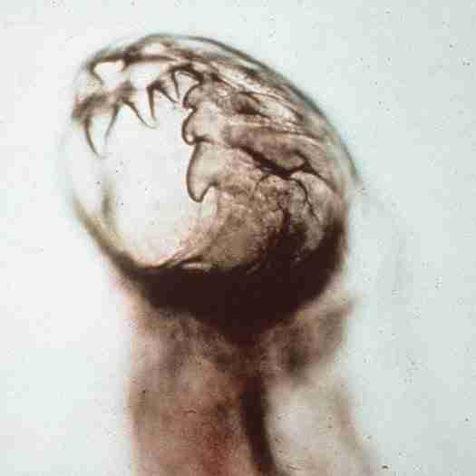 Hookworm (Αγκυλόστομα)