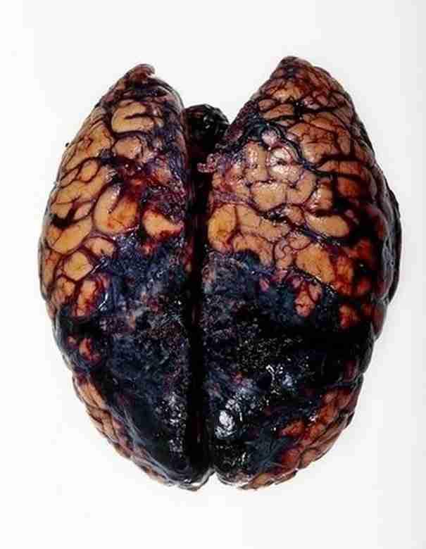 dinfo.gr - 18 ιατρικές θεραπείες από το παρελθόν που τρομάζουν!