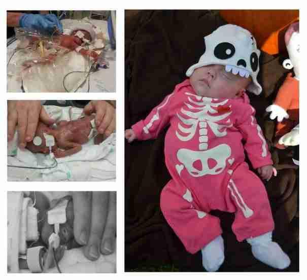 Πρόωρα μωρά: Οι μεγάλοι νικητές της ζωής! Συγκινητικές εικόνες…