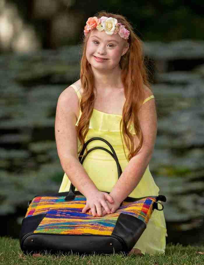 Αυτή η έφηβη με σύνδρομο Down μόλις υπέγραψε το πρώτο συμβόλαιο ως μοντέλο!