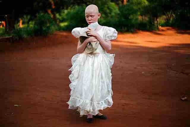 Ένα κορίτσι αλμπίνο με προβλήματα όρασης περπατάει φορώντας ένα όμορφο φόρεμα στο χωριό Malingunde, του Μαλάουι.