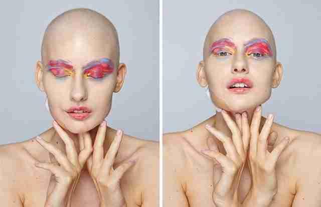Πρόσφατα διηγήθηκε την ιστορία της στο Vice και πόζαρε με σκοπό να δώσει ελπίδα και σε άλλους καρκινοπαθείς.