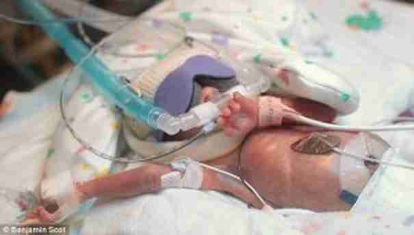 Ο μικρός Ward Miles πέρασε τις πρώτες 107 ημέρες της ζωής του στο νοσοκομείο NICU με πολλά μηχανήματα να τον υποστηρίζουν ώστε να επιβιώσει.