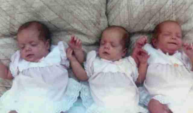 Αυτά τα τρίδυμα κοριτσάκια είχαν εκτεταμένα εγκαύματα. Δείτε πως είναι 27 χρόνια αργότερα!