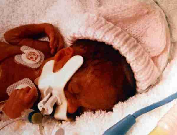 Γεννήθηκε μισό κιλό και μόλις έσβησε το πρώτο της κεράκι!