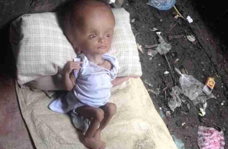 Βρήκε ένα παραμελημένο μωρό δίπλα στα σκουπίδια. Δείτε το πρόσωπο του δυο χρόνια μετά