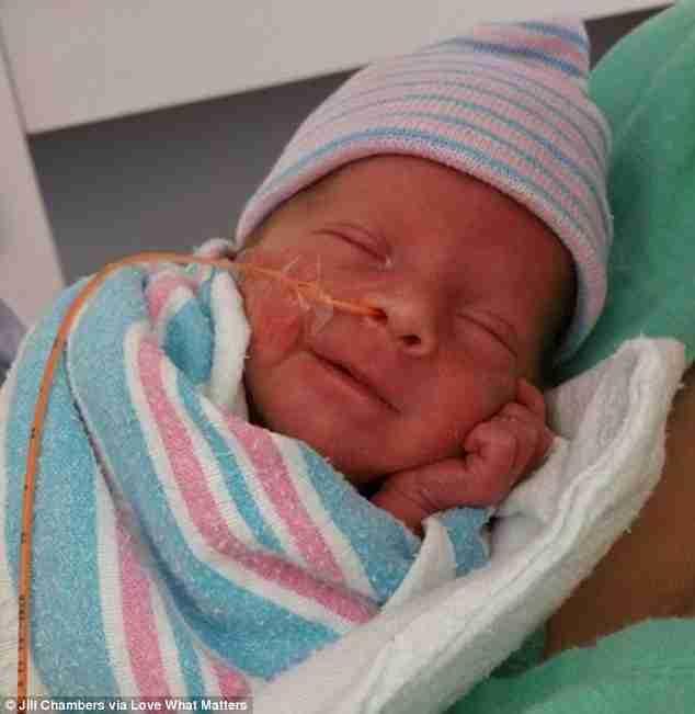 Υπέροχη στιγμή: Πρόωρο μωράκι βάρους μόλις 1.700 γραμμαρίων προσφέρει ένα μοναδικό χαμόγελο ζωής